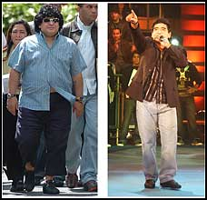 Diego Maradona before and after successful gastric bypass surgery