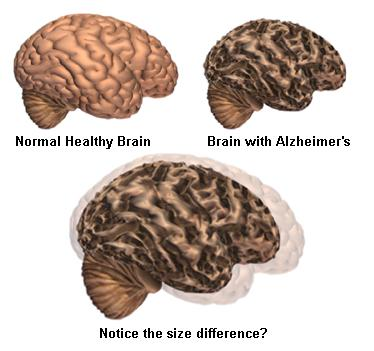 How a healthy brain compares to one with Alzheimer's. A new study shows a link between obesity and the brain disease.